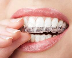 Bildresultat för bleka tänderna